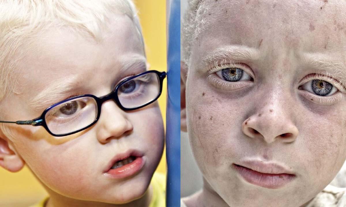 Jornada sensibilización sobre el albinismo en Alpedrete