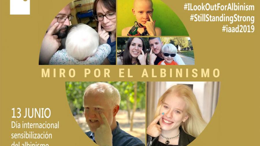 #MiroPorElAlbinismo Campaña Miro por el albinismo