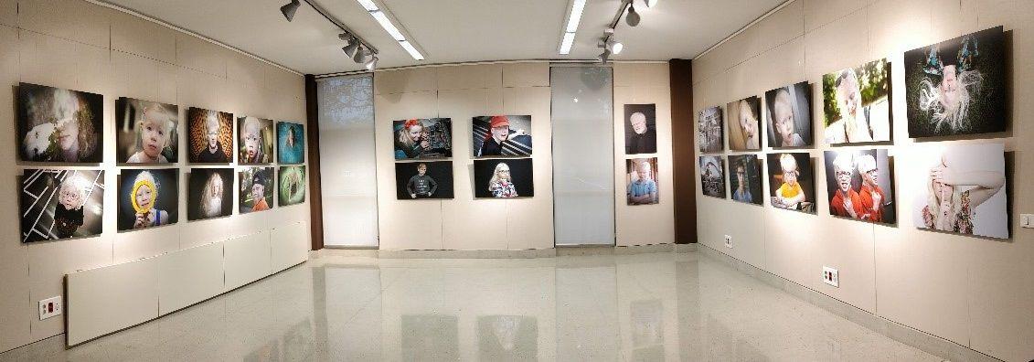 """Exposición Fotográfica """"Albinismo día a día"""" de Ana Yturralde"""