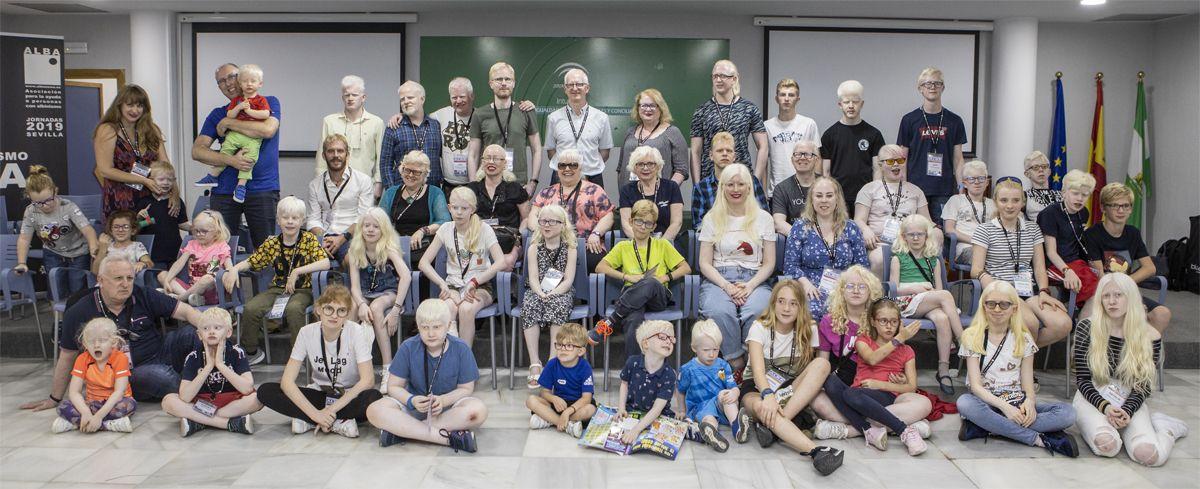 Foto de grupo de las personas con albinismo