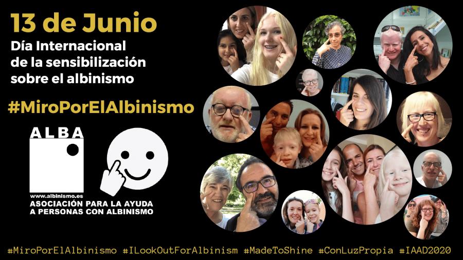 Campaña MIRO POR EL ALBINISMO, 13 de Junio Día Internacional de la sensibilización sobre el albinismo_1