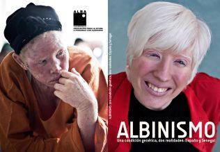 Portadas del libro sobre albinismo